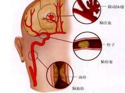 脑梗病人要长期吃药吗