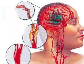 脑梗需要常年吃药吗
