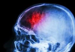 轻微脑梗是什么原因
