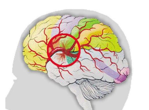 脑出血中医治疗方法