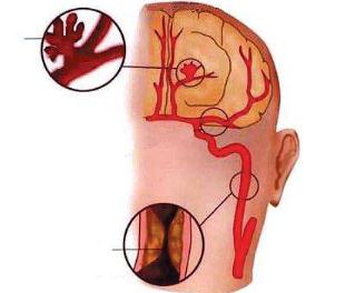 出现脑血栓前兆怎么办