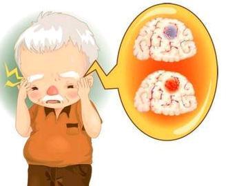 脑梗的中药治疗