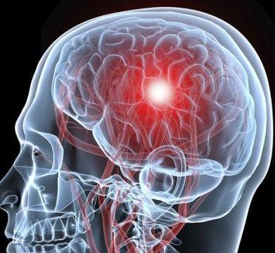 轻度脑梗的临床表现