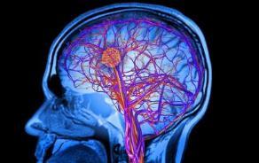 治疗脑梗药物有哪些