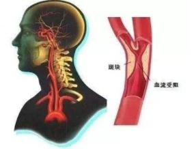 脑卒中护理指南