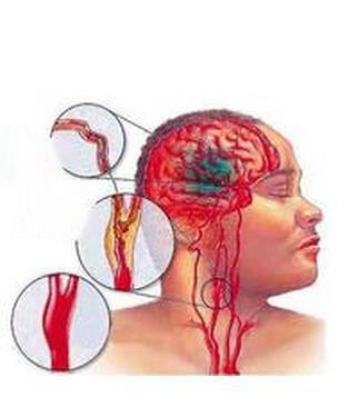 中医预防脑卒中常识